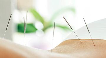 akupunktur nåle på ryg