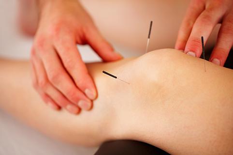 Akupunktur i Skørping, godt mod lidelser der skyldes bl.a. neurologiske problemer